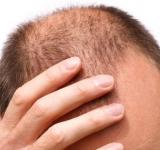 Izguba las