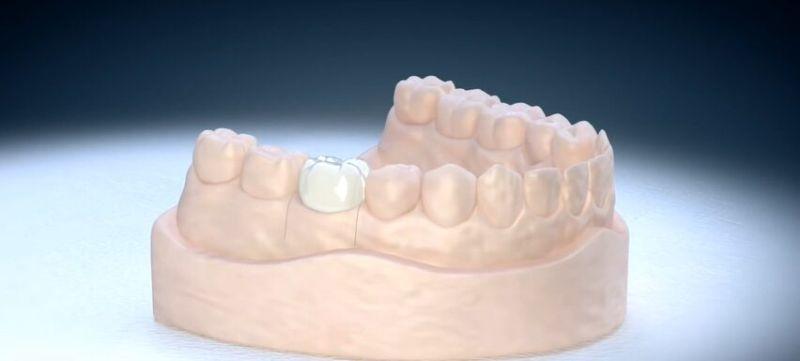 zobna prevleka